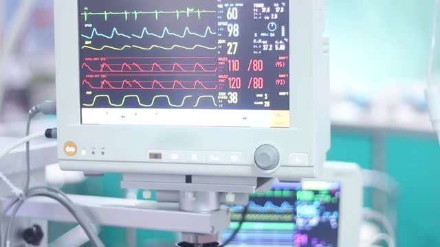 Pulse Monitor In The Hospital: Stock Video