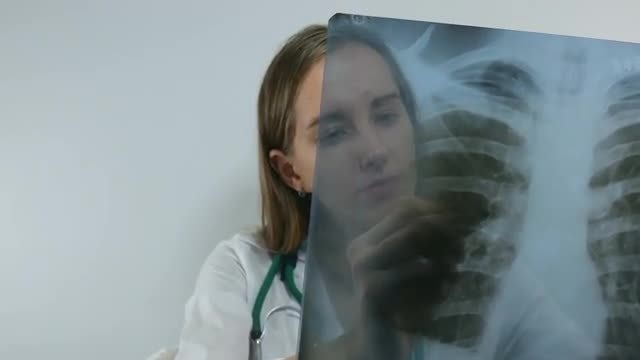 Female Doctor Examining The X-ray : Stock Video