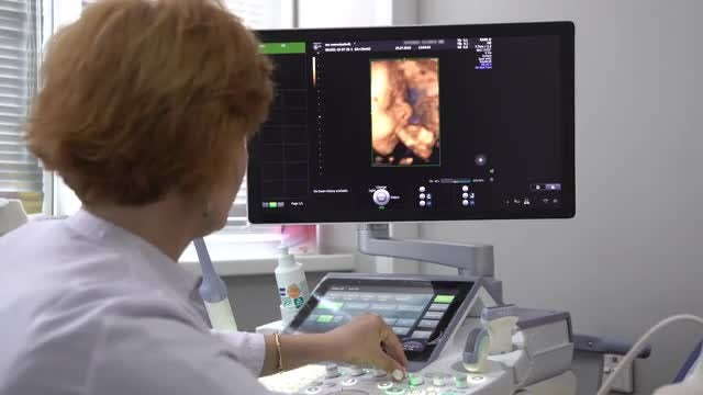 Ultrasound Examination Of Human Fetus : Stock Video