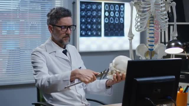 Doctor Measures Skull: Stock Video