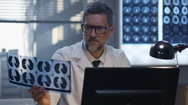 Doctor Analyzes X-Ray: Stock Video