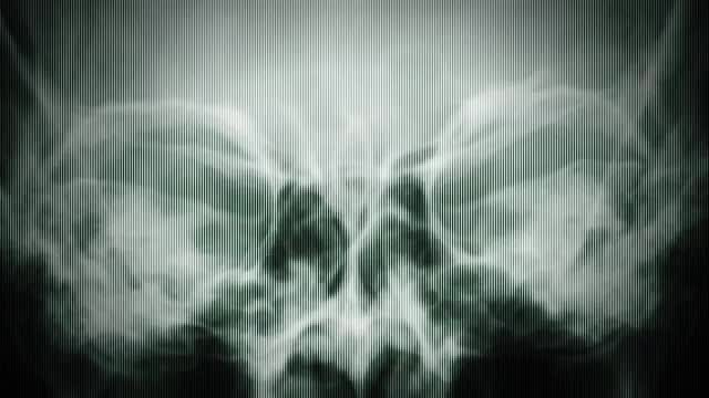 X Rays Texture: Stock Motion Graphics