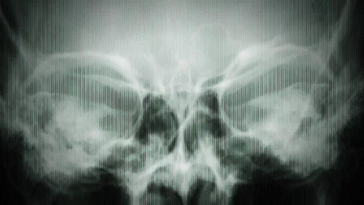 X Rays Texture: Motion Graphics