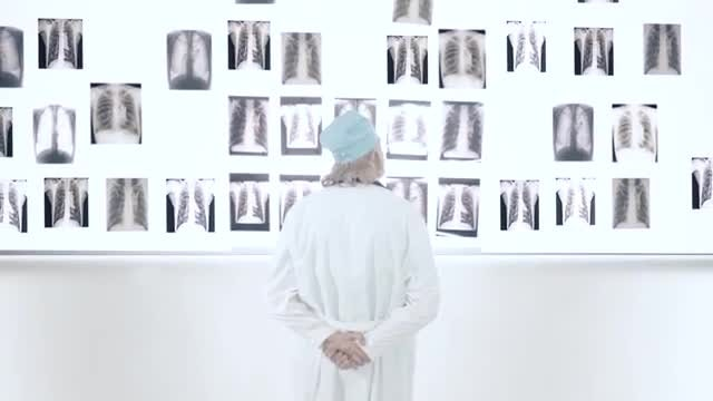 Male Doctor Looking At X-ray Images: Stock Video