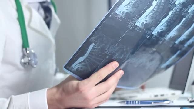 Radiologist Examining An X-ray Image: Stock Video