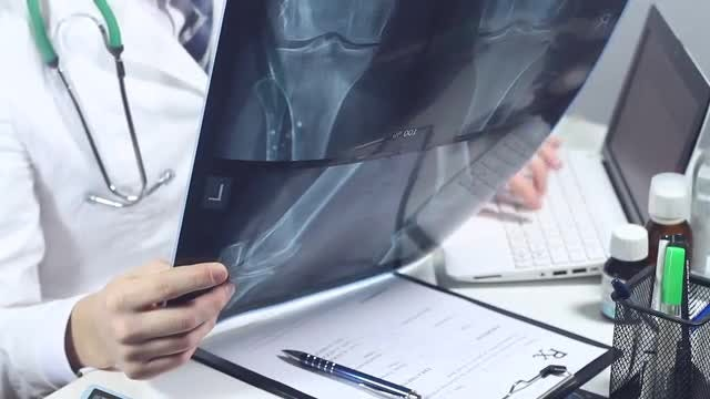 Radiologist Analyzing An X-ray Image: Stock Video