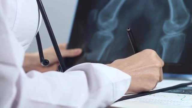Female Doctor Analyzing X-ray Image: Stock Video