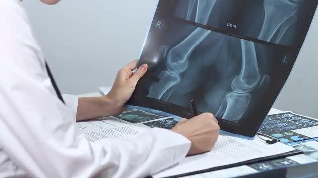 Female Doctor Examining X-ray Image: Stock Video