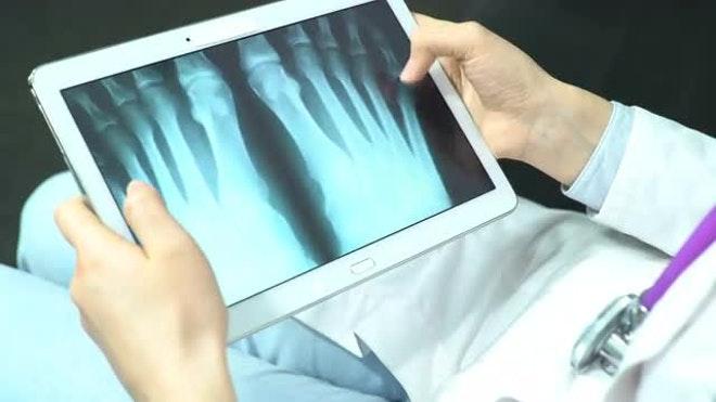 Doctor Checks X-Ray: Stock Video