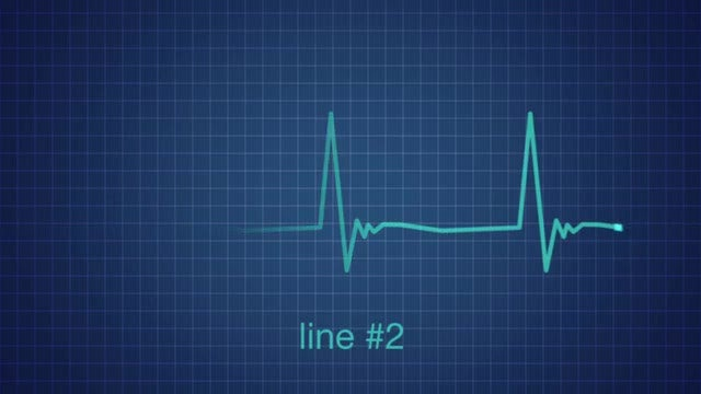 EKG Heart Monitor Flatline: After Effects Templates