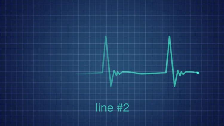 EKG Heart Monitor Flatline: After Effects Templates