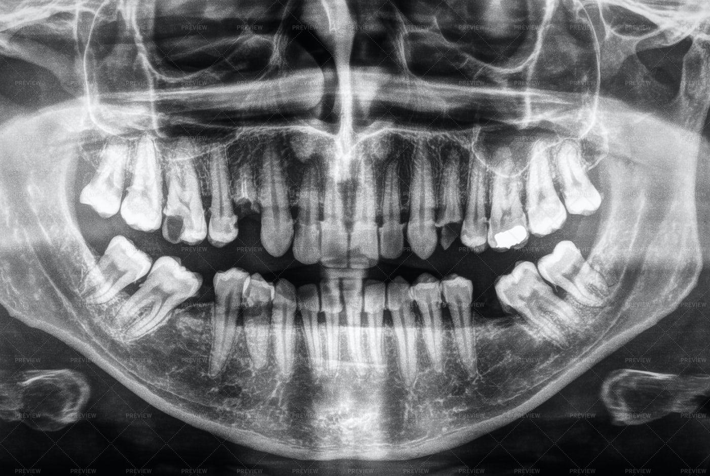 Dental X-Ray: Stock Photos