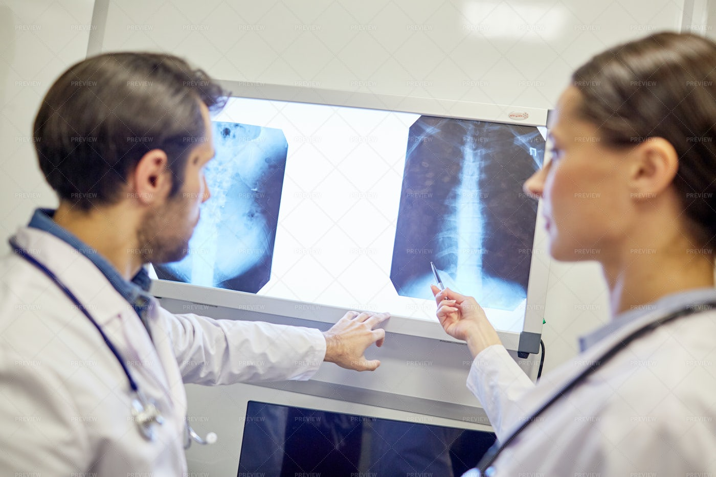 Working With X-ray Images: Stock Photos