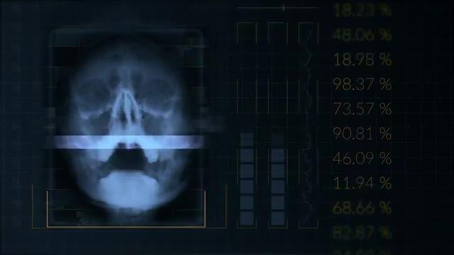 Medical Skull Scan: Stock Motion Graphics