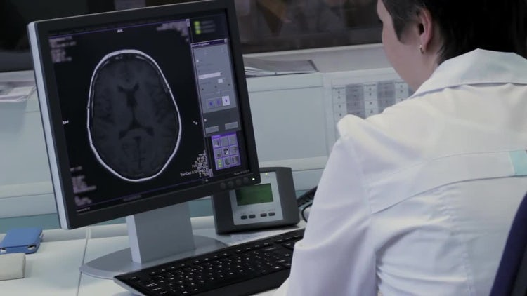 Checking A Brain Tomography Image : Stock Video