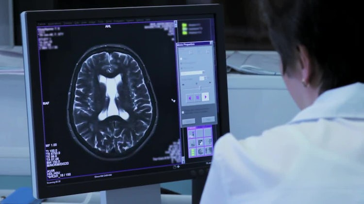 Doctor Analyzes Brain Tomography Results : Stock Video