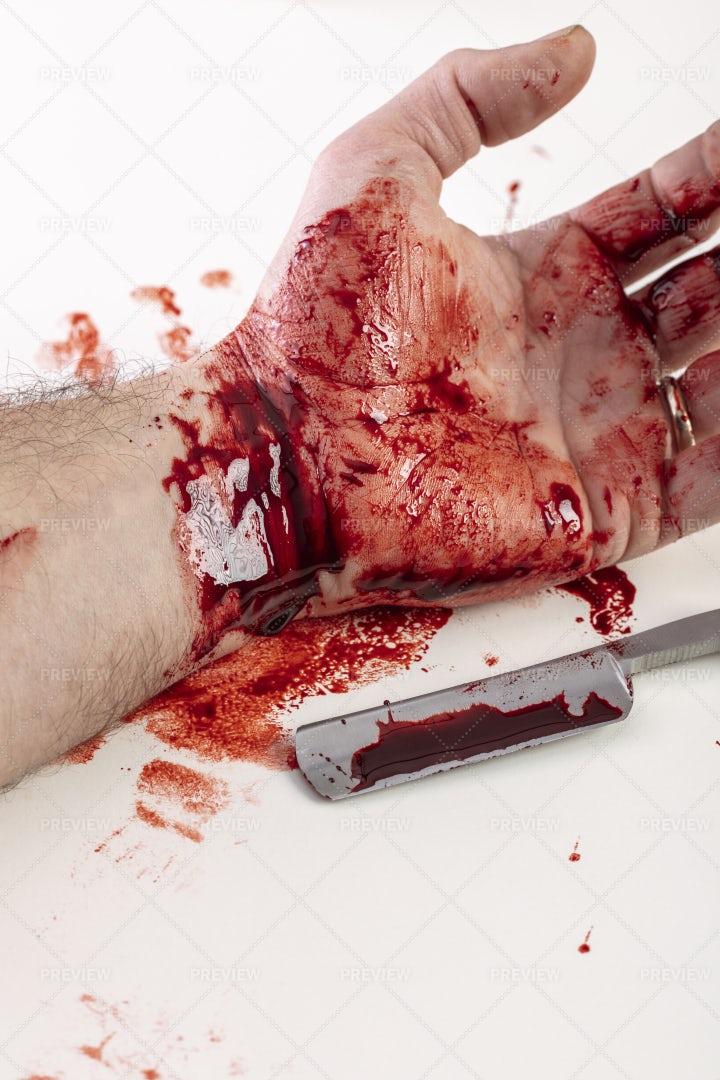 Cut Wrists: Stock Photos