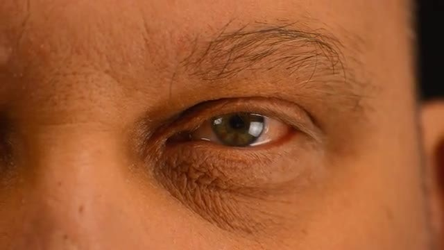 Close-up Shot Of Watery Eye: Stock Video