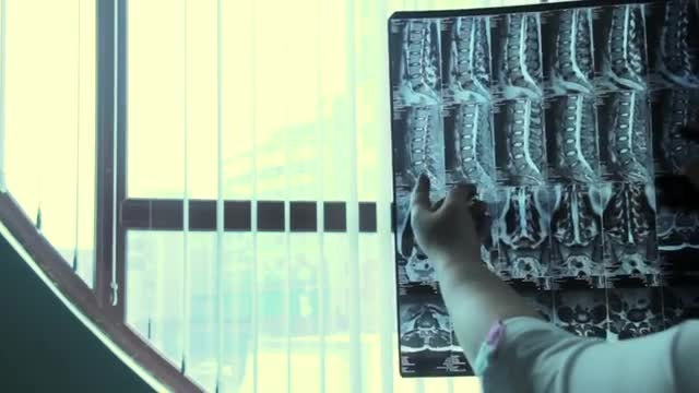 Doctor Holding Up Spine X-Ray: Stock Video