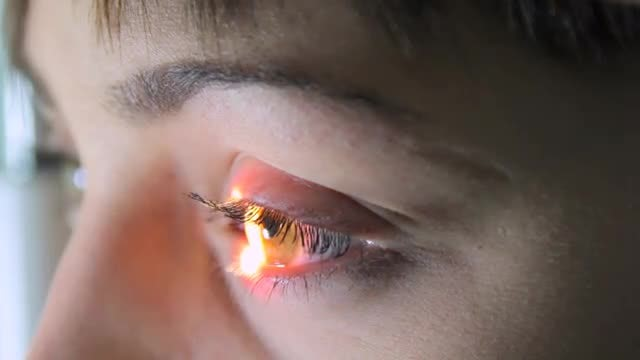 Girl Undergoing Ophthalmological Examination : Stock Video
