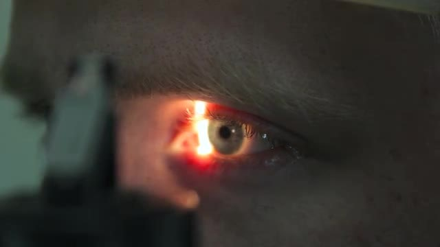 Eye Patient Undergoing Examination: Stock Video