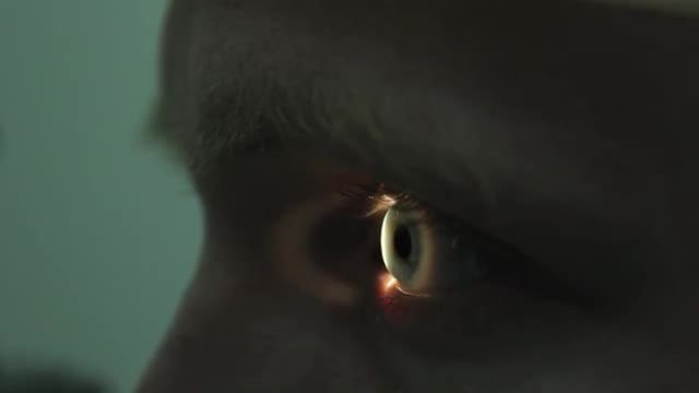 Retinal Scan Of A Young Man's Eye: Stock Video