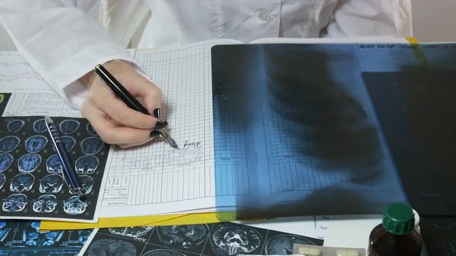 Female Doctor Analyzing Lung X-ray: Stock Video
