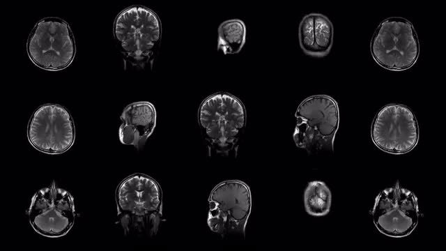 MRI Results Changing : Stock Motion Graphics