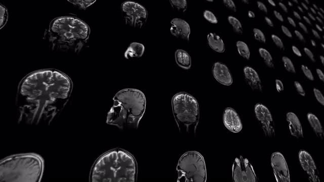 MRI Results - Changing Heads : Stock Motion Graphics